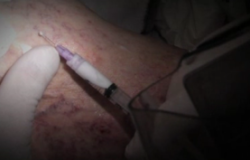 sclerotherapy-300x177