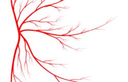 spider-veins-294x300